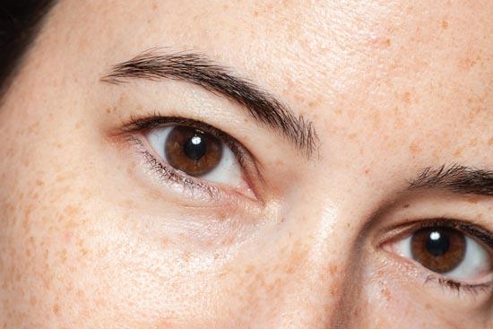 Rosacea & Brown Spots