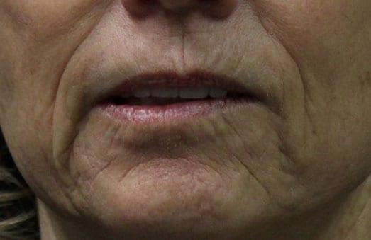 RF Skin Resurfacing